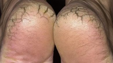Photo of كيفية علاج تشققات القدمين نهائيا داخل المنزل بسهولة !!
