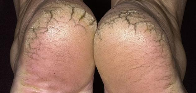 علاج تشققات القدمين - موقع حديث الصباح