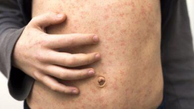Photo of الحصبة الألمانية و كل ما يلزمك معرفته عن الاصابة بالحصبة Measles